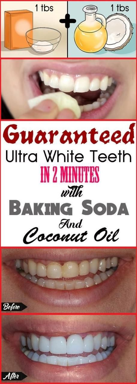 Whiten Your Yellow Teeth in Less Than 2 Minutes Easily White teeth are very important part of our body, It is the reality of life yellow teeth is embarrassed for you. if teeth are strong then the w…