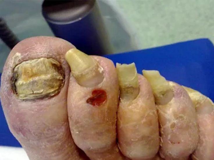 El hongo de las uñas sanar klotrimazol