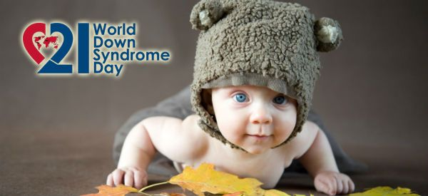 42 Great Down Syndrome Resources You Should Know About - Repinned by @PediaStaff – Please Visit  ht.ly/63sNt for all our pediatric therapy pins