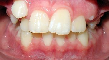 """Лечение и удаление зубов. Примеры работ специалистов стоматологической клиники Ортодонт. """"Было № 2"""""""