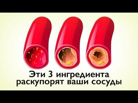 КАК ОЧИСТИТЬ СОСУДЫ С ПОМОЩЬЮ 3-Х ПРОДУКТОВ? - YouTube