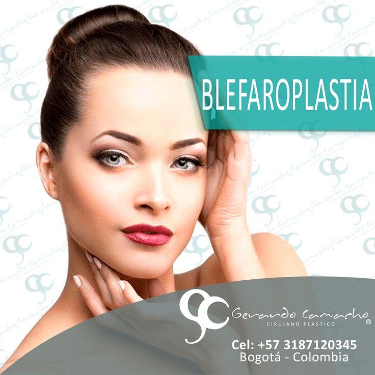 """La Blefaroplastia es un procedimiento de cirugía plástica Facial solicitado tanto por mujeres como por hombres. Busca corregir el exceso de piel o grasa o """"bolsas de los Ojos """" en los parpados superiores e inferiores otorgando una apariencia de..."""