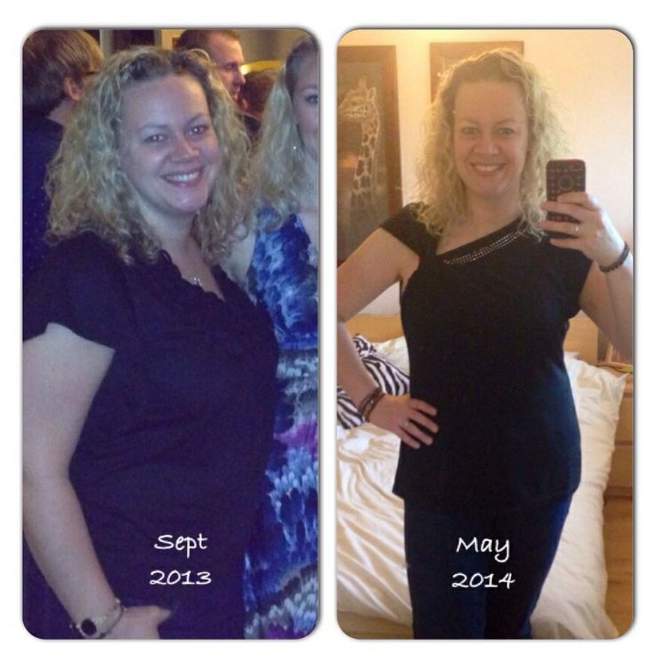EASYLOSS Virtual Gastric Band Hypnosis App. My before and ...