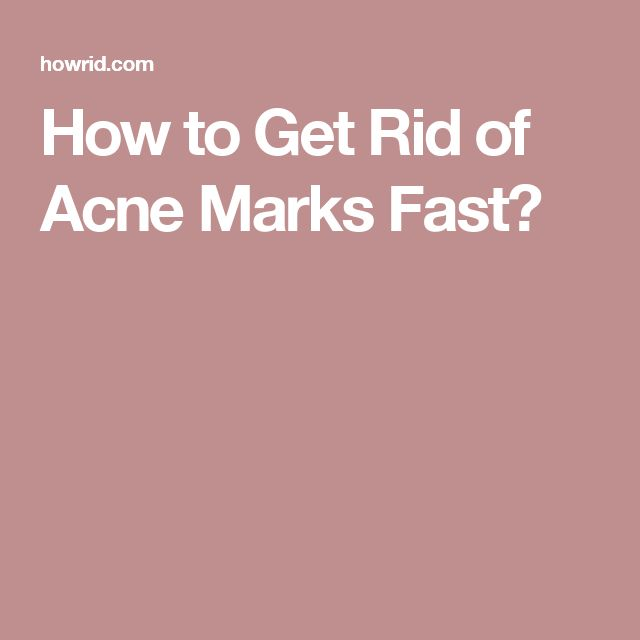 How to Get Rid of Acne Marks Fast?