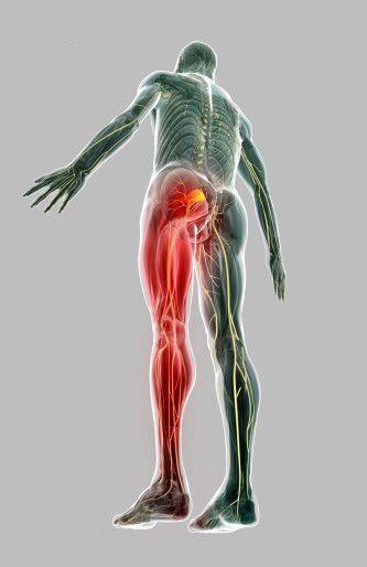18 best Back Pain Down Leg images on Pinterest