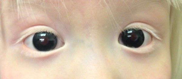 Using tinted contact lenses in practice