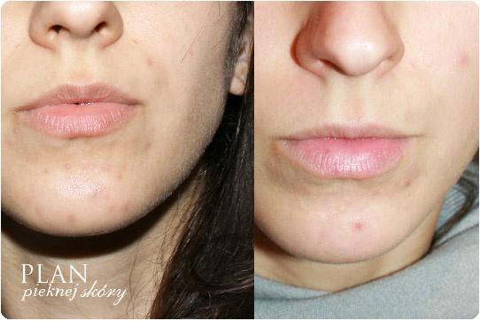 Alina Rose Makeup Blog: Plan pięknej skóry: Podsumowanie + nowa pielęgnacja skóry...