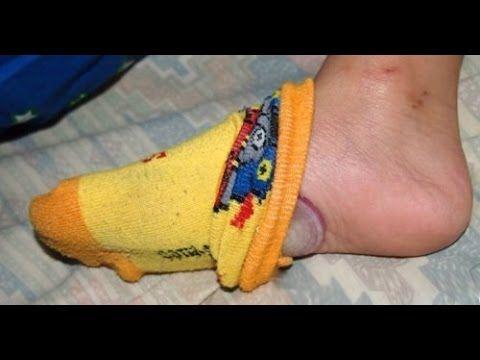 Saiba o que acontece se você  dormir com uma cebola nos pés! - YouTube