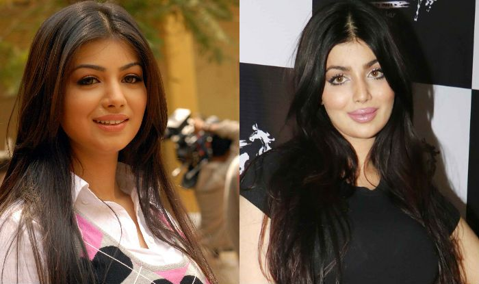 Ayesha Takia, latest victim of plastic surgery gone wrong in Bollywood? Actress' pictures post lip job keep ... - India.com #FansnStars