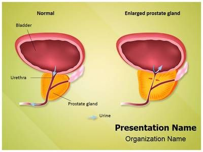 Benign Prostatic Hyperplasia PowerPoint Presentation Template is one of the best Medical PowerPoint templates by EditableTemplates.com. #EditableTemplates #Human #Obstruction #Hyperplasia #Urinary #Urethra #Condition #Male #Urination #Benign Prostatic Hyperplasia #Gland #Increase #Cell #Prostate #Enlargement #System #Reproduction #Urethral #Reproductive #Organ #Science #Common #Infertility #Sexual #Painful #Flow #Compress #Canal #Bph #Health #Tissue #Hesitancy #Normal #Anatomy  #Size #S