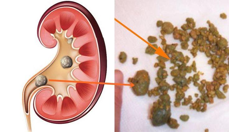 Quieres  salud: Elimina las piedras de los riñones en 6 dias con e...