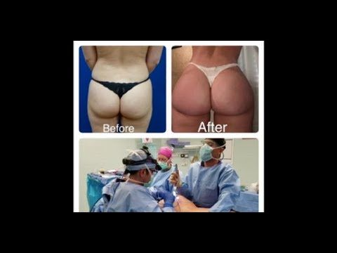 Check out Hourglass Butt Augmentation Procedure- Dr. Cortes, Dr. Hourglass, Houston,Dallas,San Antonio,Austin. You will notice that in this particular patient her buttocks changed from square shape to A-shape.