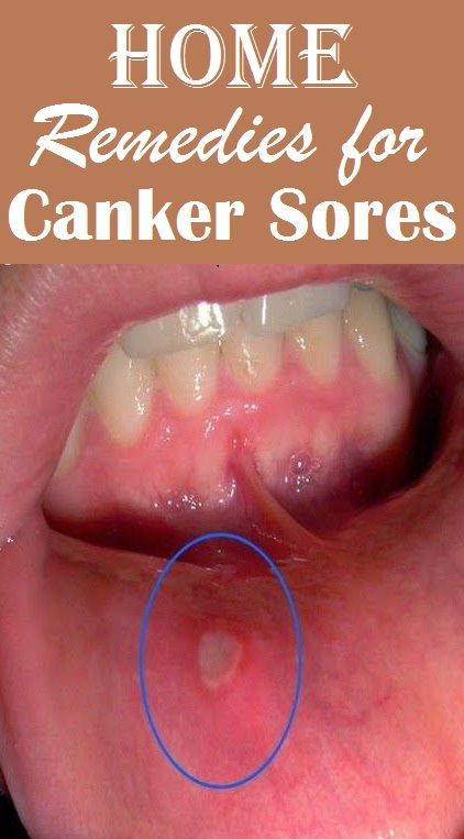 Top 10 Home Remedies for Canker Sores..