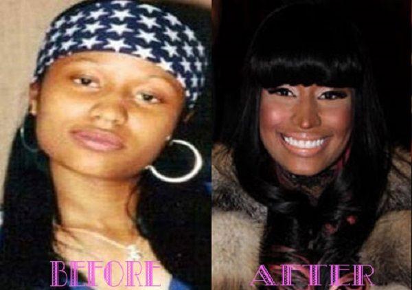 nicki minaj before and after surgery nicki minaj before and after surgery