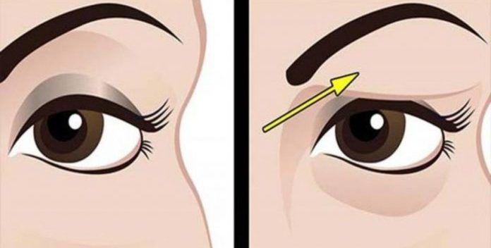 Hangende oogleden ontstaan meestal bij het ouder worden of door vermoeidheid. Ze kunnen er mensen plots veel ouder doen uitzien, maar ook problemen veroorzaken doordat het zicht belemmerd wordt. St…