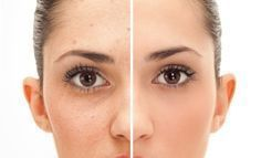 How to Remove Pimple Marks? Clear skin increases the charm of a person. It is something that adds up the attraction in the personality of an individual. Everyone aspires to have a fairer and clear skin without any blemishes and marks. But, at a few times