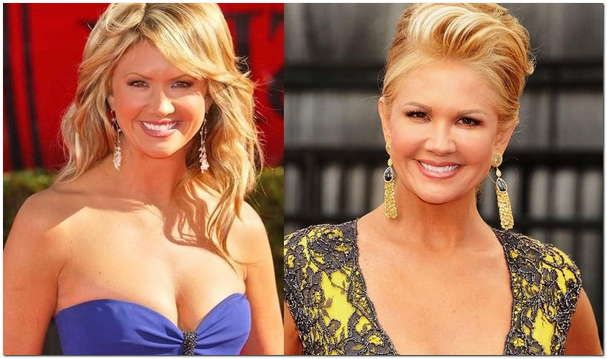 Nancy O Dell Plastic Surgery Before & After