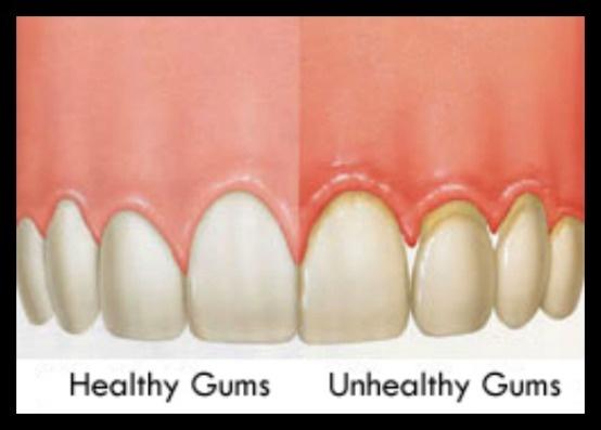 Healthy vs Unhealthy Gums | Dental Hygiene Program | Pinterest