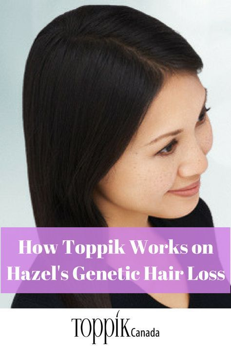 While hair loss is typically considered to be a problem that affects men, 40% of Americans who experience hair loss are actually women. Female pattern hair loss, also known as androgenic hair loss is the most common type of genetic hair loss and unfortunately is not preventable. Continue Reading...
