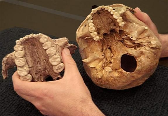The extinct early human relative dubbed Nutcracker Man, Paranthropus boisei, had much larger teeth (left) than those of modern humans (right), as shown in these casts of two palates. Credit: Melissa Lutz Blouin, University of Arkansas