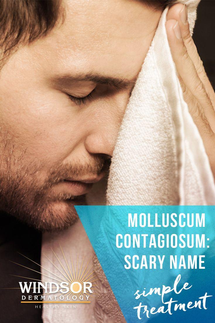 Molluscum Contagiosum: scary name, simple treatment.