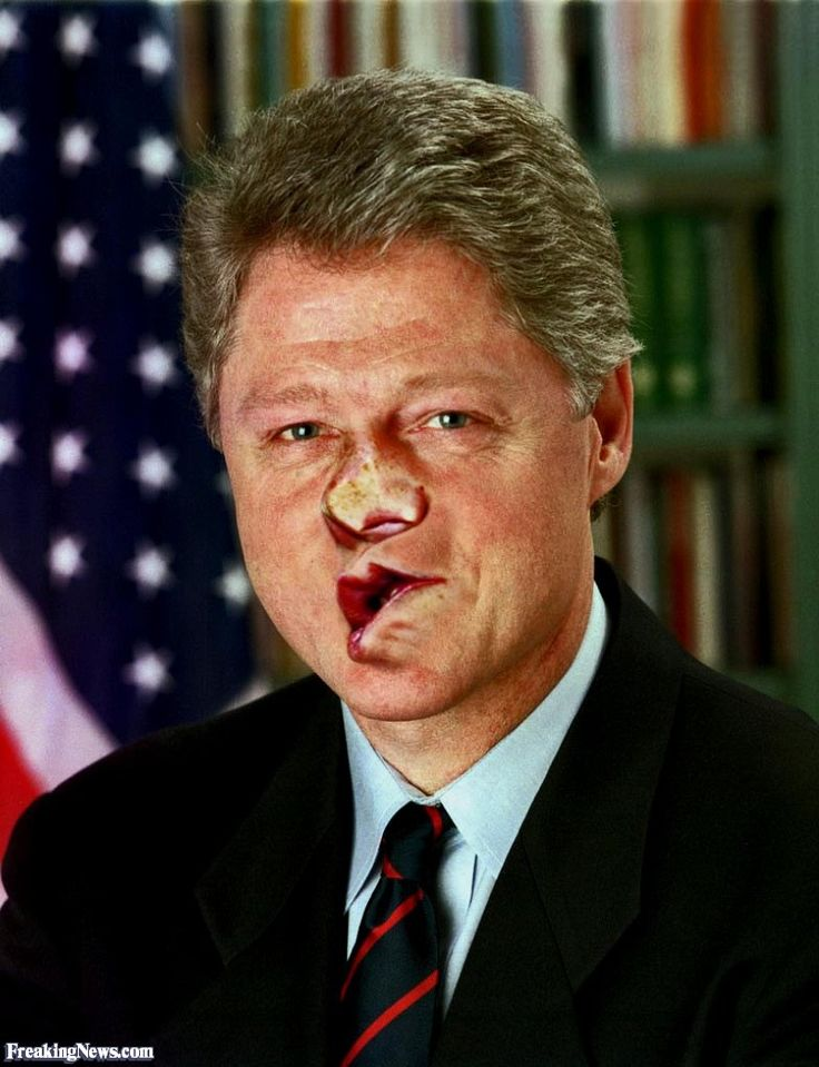 Bill Clinton After Being Hit by Hillary