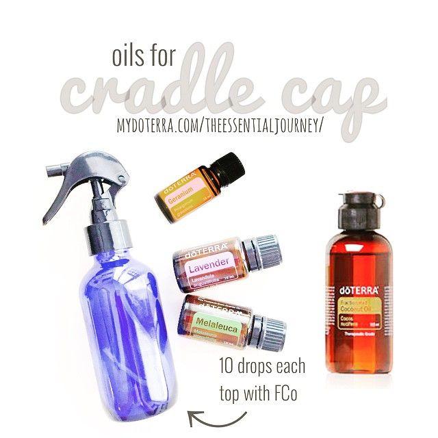 Lavender + Melaleuca + Geranium + FCO Cradle Cap relief using dōTERRA essential oil.