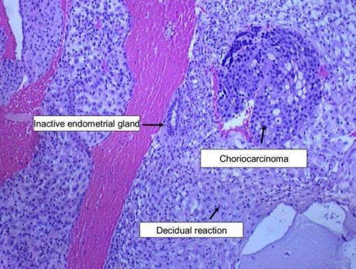 Micrograph representing endometrial biopsy showing choriocarcinoma with endometrial biopsy