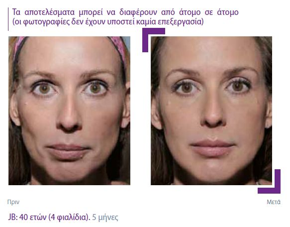 The Sculptra Therapy or 'facelift in a bottle'! Learn more and contact us: www.lifting4u.gr www.facebook.com/kondylimaria For appointments call: 6945151574