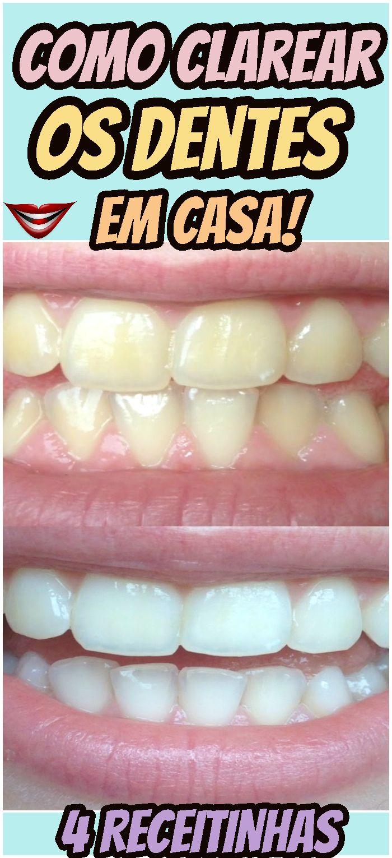 4 Receitas Naturais Para Clarear Os Dentes Em Casa Dentes Brancos
