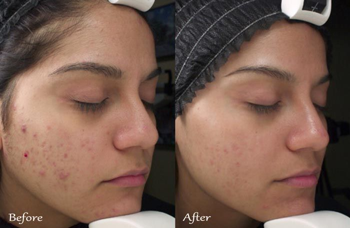 TCA Chemical Peel Before & After Acne Scars