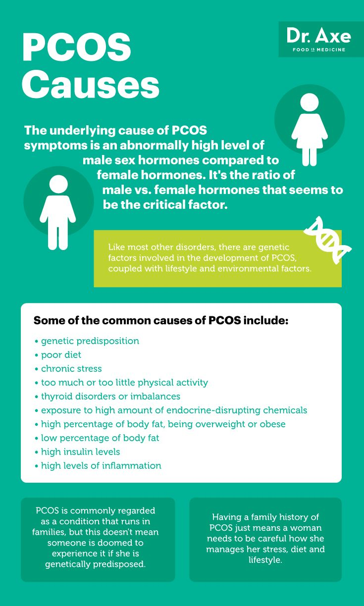 Causes of PCOS symptoms - Dr. Axe http://www.draxe.com #health #holistic #natural