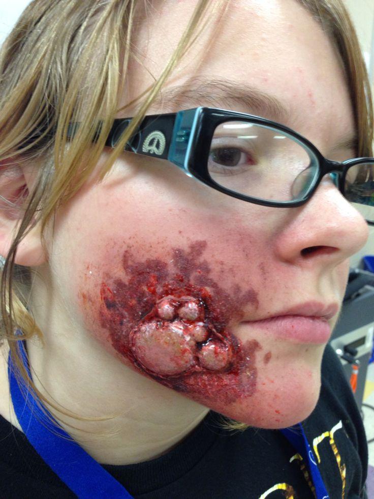 Best Wounds Bruises Boils