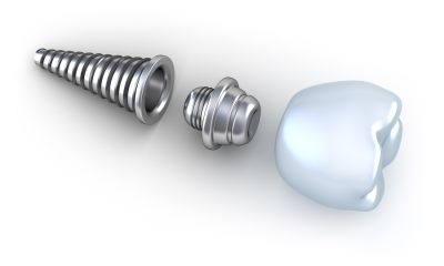Single #toothimplants are one of the most popular #dental solutions for replacing one or more #missingteeth. If you're missing one or more teeth, before going for that you must know some points about single tooth implant procedure.