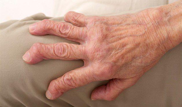 Když se klouby změní v nepřátele: co se děje při revmatické artritidě