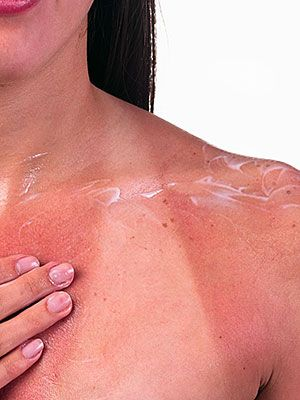 Sun Poisoning Pictures | additionally result blotches of large to small areas where the
