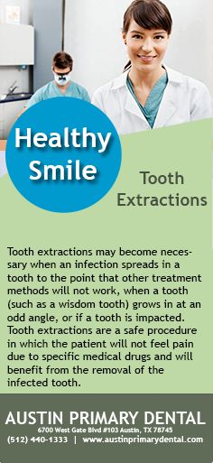 If an infection spreads in a tooth you may need a tooth extraction. #ToothExtractions #Dentist #HealthySmile #ToothExtraction #dentistry