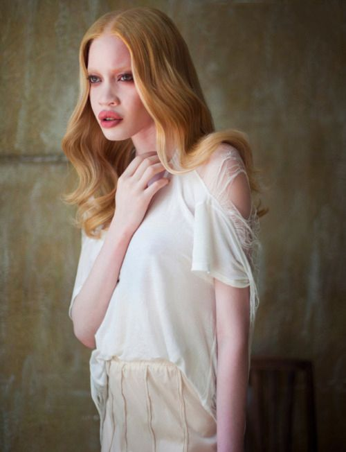 Diandra Forrest - African American Albino Model
