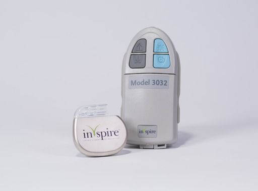 The Inspire therapy generator is implanted in the upper chest in an outpatient procedure. The Inspire sleep remote is used to turn the therapy on before bed and off upon waking.