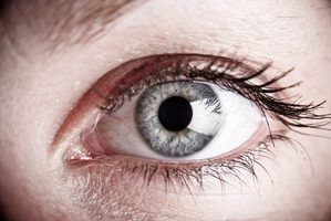¿Cuáles son las causas del edema periorbitario agudo?