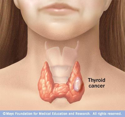 September is Thyroid Cancer Awareness Month. About 62,980 new cases of thyroid cancer will be diagnosed this year. Learn more.