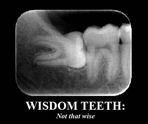 Yea. Makes me wonder who decided to call them wisdom teeth. Should be more like pain the you know what teeth.
