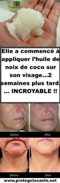 Elle a commencé à appliquer l'huile de noix de coco sur son visage…2 semaines plus tard,… INCROYABLE !!