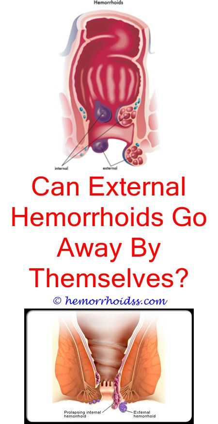 Do Hemorrhoids Go Away By Themselves Do Hemorrhoids Bleed When You
