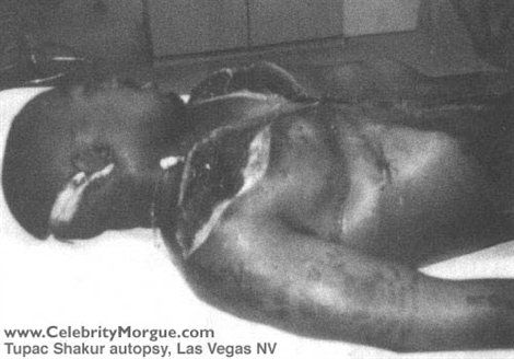 Morgue Photos of Dead Celebrities | Tupac Shakur is Alive!
