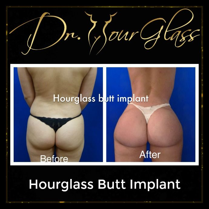 "People today find celebrities like Jennifer Lopez and Kim Kardashian very attractive and sexy because of their wonderful buttocks. If you want to increase the size and improve the shape of your buttocks Dr. Hourglass has a procedure called ""Hourglass Butt Implant""."