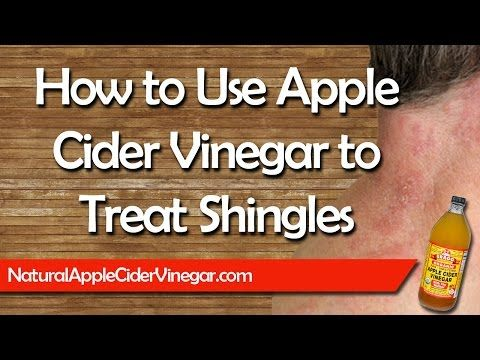 Natural Remedies for Shingles | Apple Cider Vinegar Cure