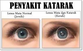 Selamat datang diblog kami kali ini saya akan membahas tentang 6 Ciri Ciri Mata Akan Katarak dan Cara Pencegahannya