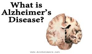 5.2 million Americans currently have Alzheimer's. Alzheimer's is one cause of dementia, but there are others. Learn about prevention, stages, and treatment.