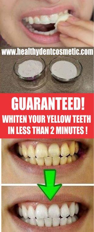 GUARANTEED! NOT JOKE! WHITEN YOUR YELLOW TEETH IN LESS THAN 2 MINUTES!